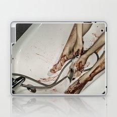 Washing off Laptop & iPad Skin
