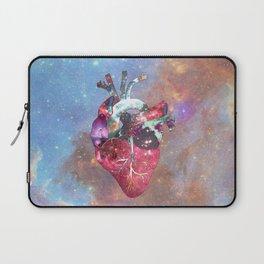 Superstar Heart Laptop Sleeve