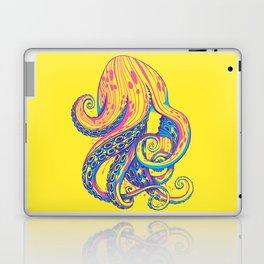 Curls Laptop & iPad Skin