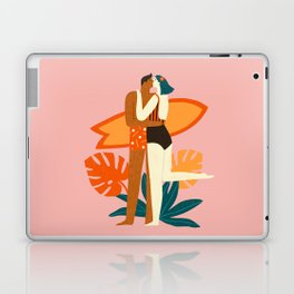 The kiss Laptop & iPad Skin
