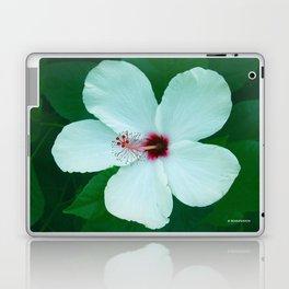 HIBICUS FLOWER Laptop & iPad Skin