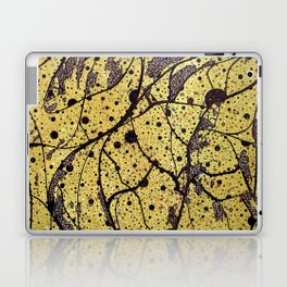 Summer's Almost Gone Laptop & iPad Skin
