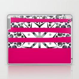 Dancing stripes 2 Laptop & iPad Skin