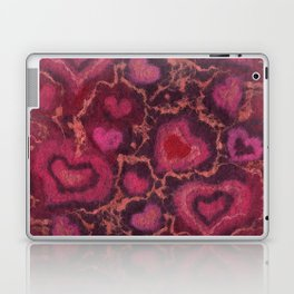The Hearts Laptop & iPad Skin