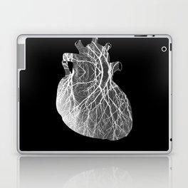 Heartree Laptop & iPad Skin
