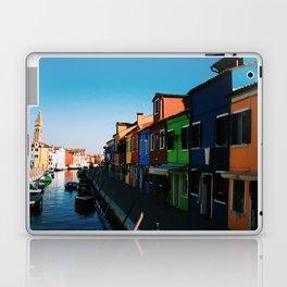 Venice Print Set, Venice Wall Art, Italy Photography Gallery Wall, Europe Wall Art, Europe Decor 5x5 Laptop & iPad Skin