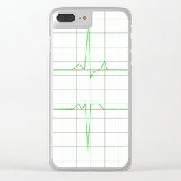 Normal Heart Rhythm Clear iPhone Case