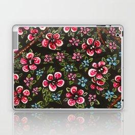 L'amour fait rougir Laptop & iPad Skin