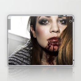 Bloody Laptop & iPad Skin