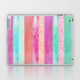 Tropical Stripes - Pink, Aqua And Peach Colorway Laptop & iPad Skin