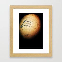 Lesions in the brain Framed Art Print