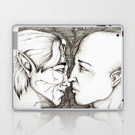 Kiss Laptop & iPad Skin