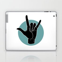 ILY - I Love You - Sign Language - Black on Green Blue 00 Laptop & iPad Skin