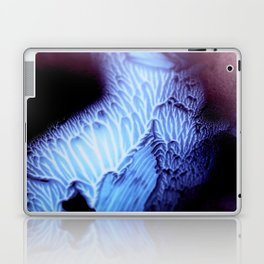 VIRUS Laptop & iPad Skin