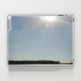 Lake Sunstar Laptop & iPad Skin