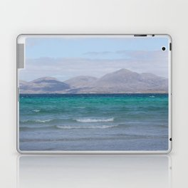 Beach 3 Lewis and Harris 4 Laptop & iPad Skin