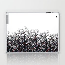 Tree Beams Laptop & iPad Skin