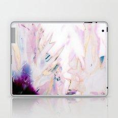 XI Laptop & iPad Skin