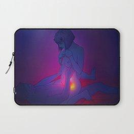 Erotic 1 Laptop Sleeve