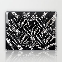 Black&Silver Abstract Bling Pattern  Laptop & iPad Skin