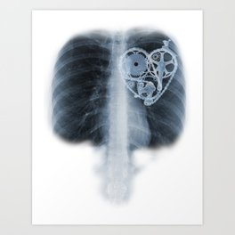 X Ray Bicycle heart components Art Print
