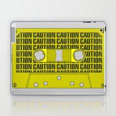 Caution Tape Laptop & iPad Skin