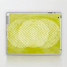 TRIO Laptop & iPad Skin
