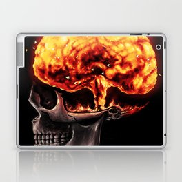 Mind Blown Laptop & iPad Skin