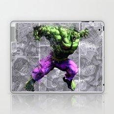 Banner Laptop & iPad Skin