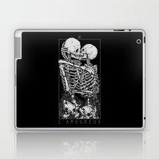 The Lovers Laptop & iPad Skin