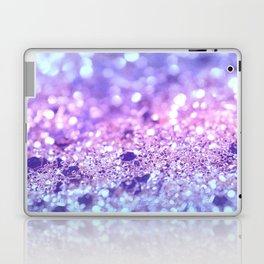Summer Unicorn Girls Glitter #2 #shiny #pastel #decor #art #society6 Laptop & iPad Skin