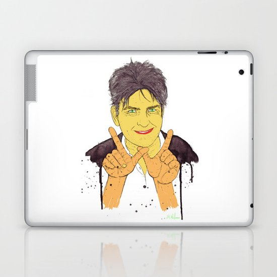 W is for Winning Laptop & iPad Skin