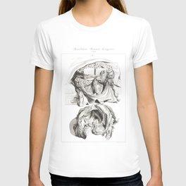 Human Anatomy Art Print BRAIN SKULL DISSECTION Vintage Anatomy, doctor medical art, Antique Book Pla T-shirt