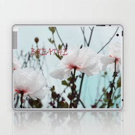 Matilija White Poppies Laptop & iPad Skin