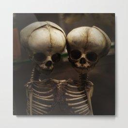Conjoined Infant Skeletons at Museum Vrolik Metal Print