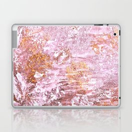 Abstract Autumn In Gold-Rosé Laptop & iPad Skin