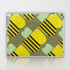 B's Laptop & iPad Skin