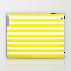 Yellow Lines Laptop & iPad Skin
