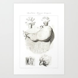Human Anatomy Art Print STOMACH gastroenterologists Vintage Anatomy, doctor medical art, Antique Art Print
