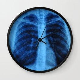 x ray medical radiography Wall Clock