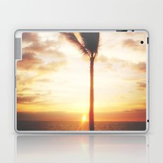 Through The Palm Laptop & iPad Skin