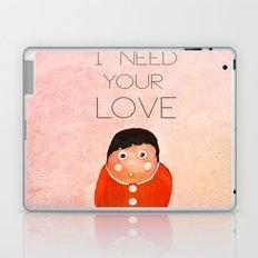 i  need your love Laptop & iPad Skin