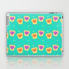 Sweet Lovers - Pattern Laptop & iPad Skin