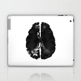 Inkblot Brain Laptop & iPad Skin