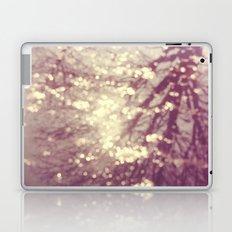 Bright Lights Laptop & iPad Skin