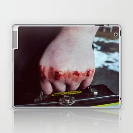 Lunchbox Laptop & iPad Skin