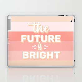 The Future Is Bright Laptop & iPad Skin