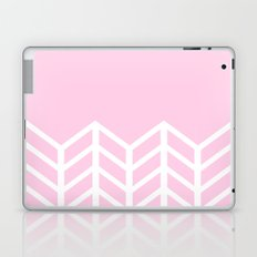 LACE CHEVRON (PINK) Laptop & iPad Skin