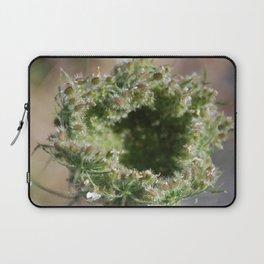 lace under glass Laptop Sleeve
