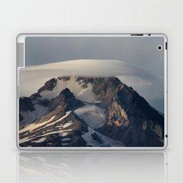 Hood With Cap Laptop & iPad Skin
